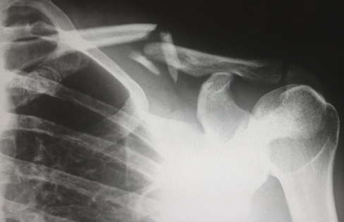 Where should I go for an x ray? Hospital, urgent care, or independent radiology practice?